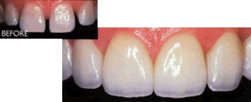 dental crowns before after